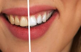 cabinet stomatologic Drumul Taberei