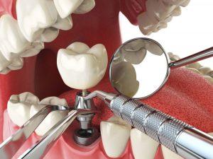 tratamente de suprafata pentru implanturi