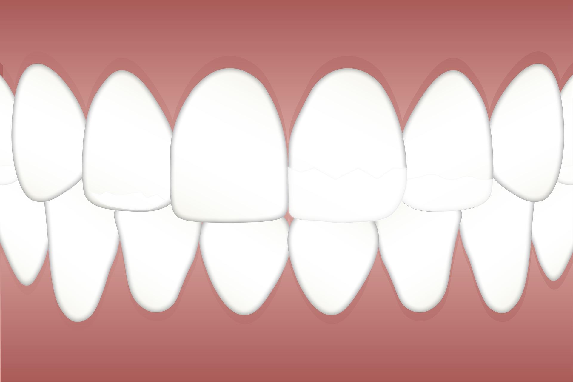 intretinerea dintilor naturali